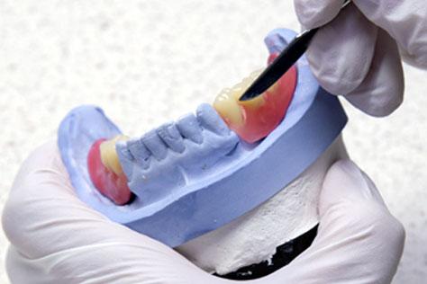 Besselink gedeeltelijke prothese